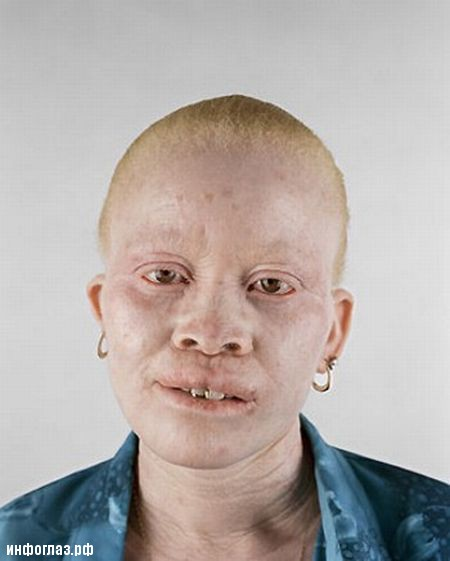 Негры альбиносы (10 фото)